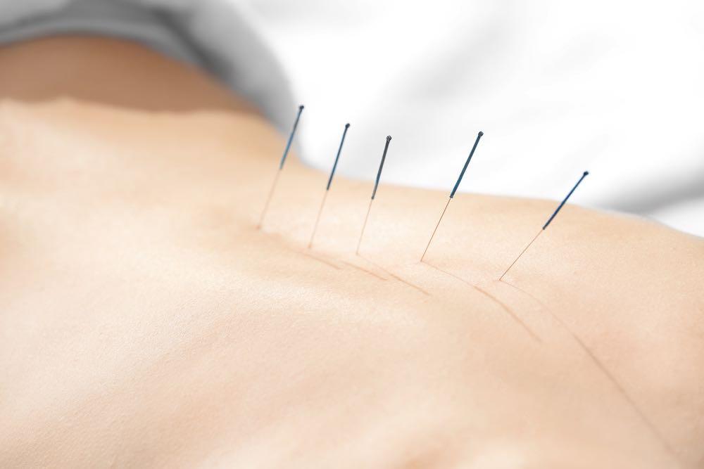 sportsakupunktur hos m-massage